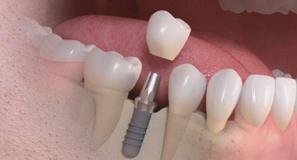 Impianto dentale più vantaggi che rischi