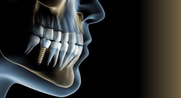 Implantologia: le 10 cose da sapere!
